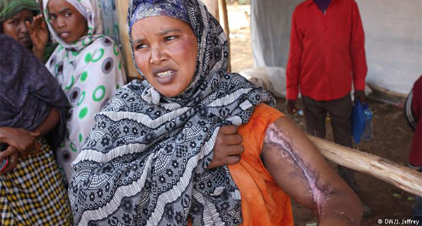 Ethnic Violence in Ethiopia Leaves Deep Wounds